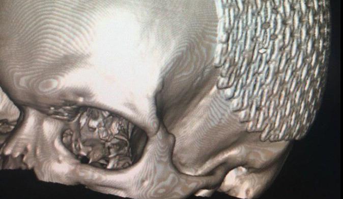 Дефект черепа парня накрыли специальной пластиной / Facebook, Сергей Рыженко