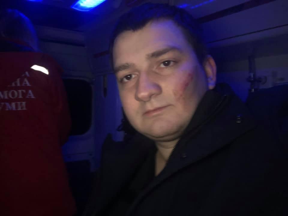 На Ананченка напали возле его дома / фото: Facebook Михаил Ананченко