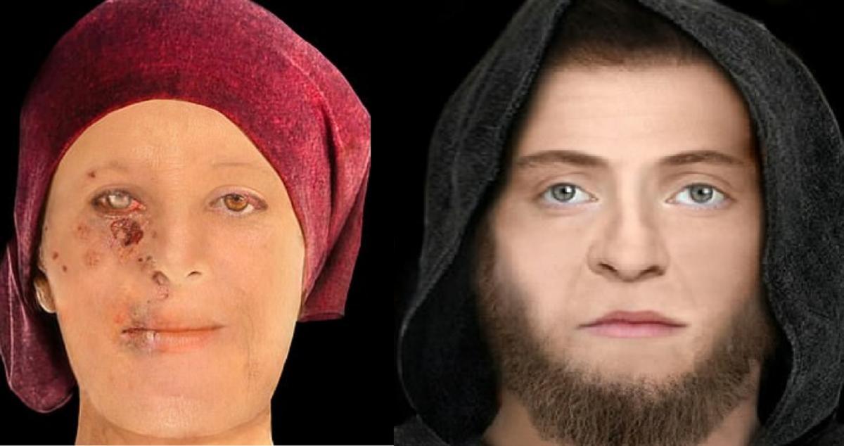 Жінка була частково осліплена через проказу / dailymail.co.uk