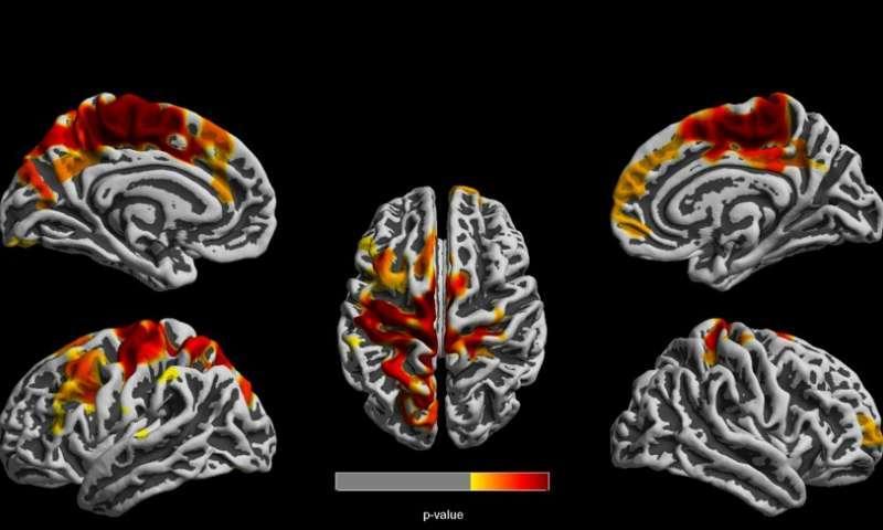 Коронавирус способен ухудшить когнитивные способности человеческого мозга / medicalxpress.com