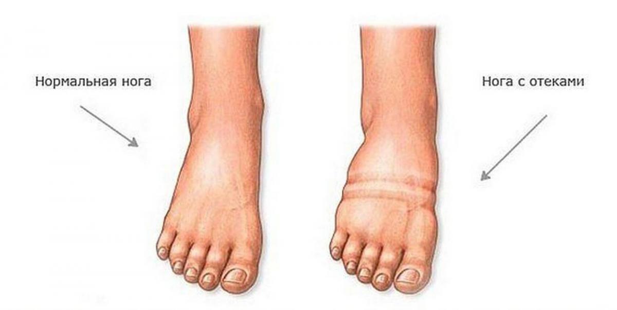 Отекают ноги, фото, как выглядят отекшие ноги / medsklad