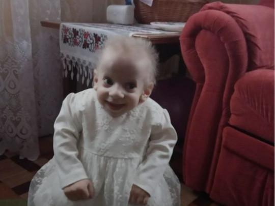 Из-за болезни каждый год девочка старела на 8-10 лет/ фото: Вестник
