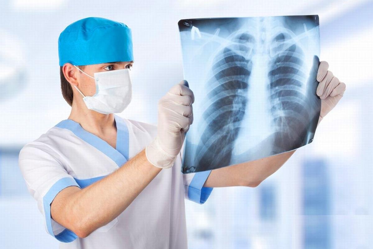Как лечить воспаление легких / acmespb.ru