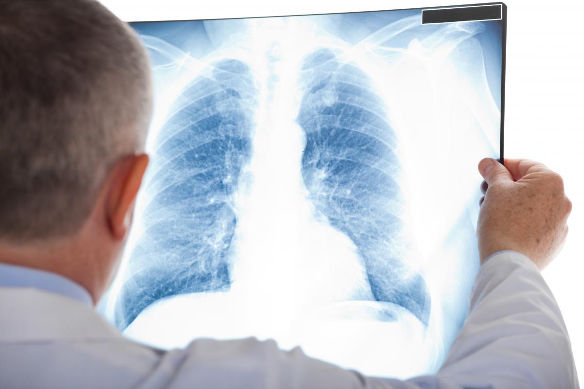 Людей с пневмонией становится меньше / фото ua.depositphotos.com