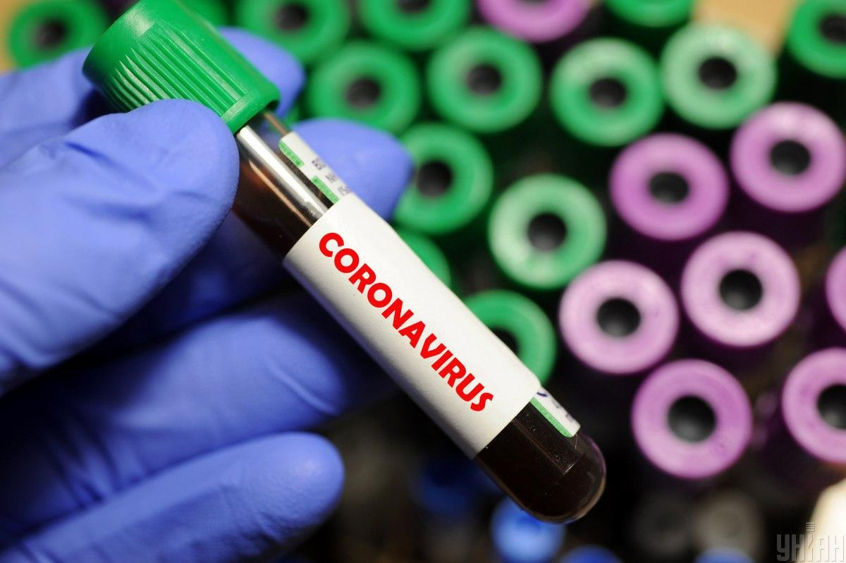 На данный момент зафиксировано 29 случаев заболевания COVID-19 / фото УНИАН