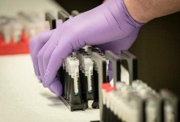 Легені пошкоджені серйозно і надовго: український дипломат в Мюнхені поборов коронавірус