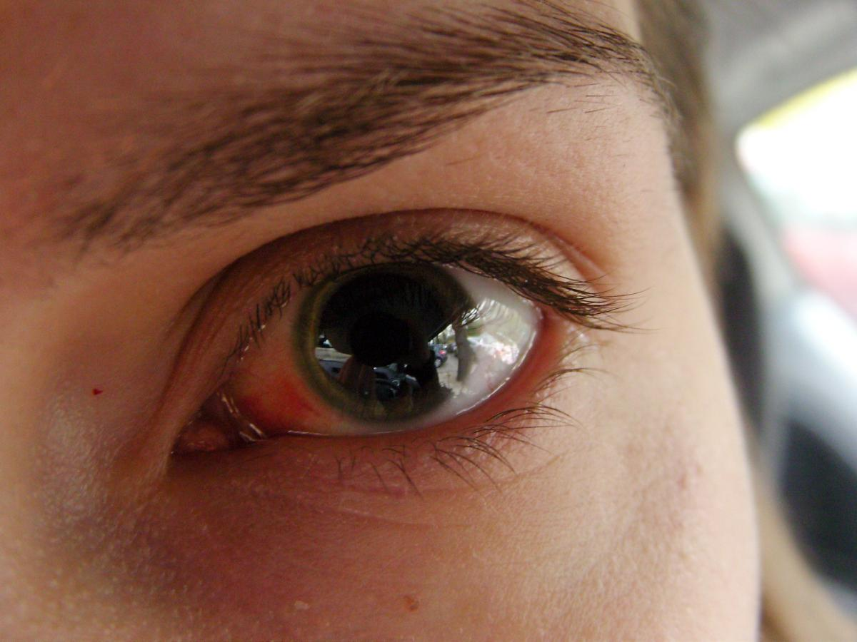В регионах, где много больных COVID-19, люди чаще жалуются на боль в глазах / Flickr/Dominika Komender