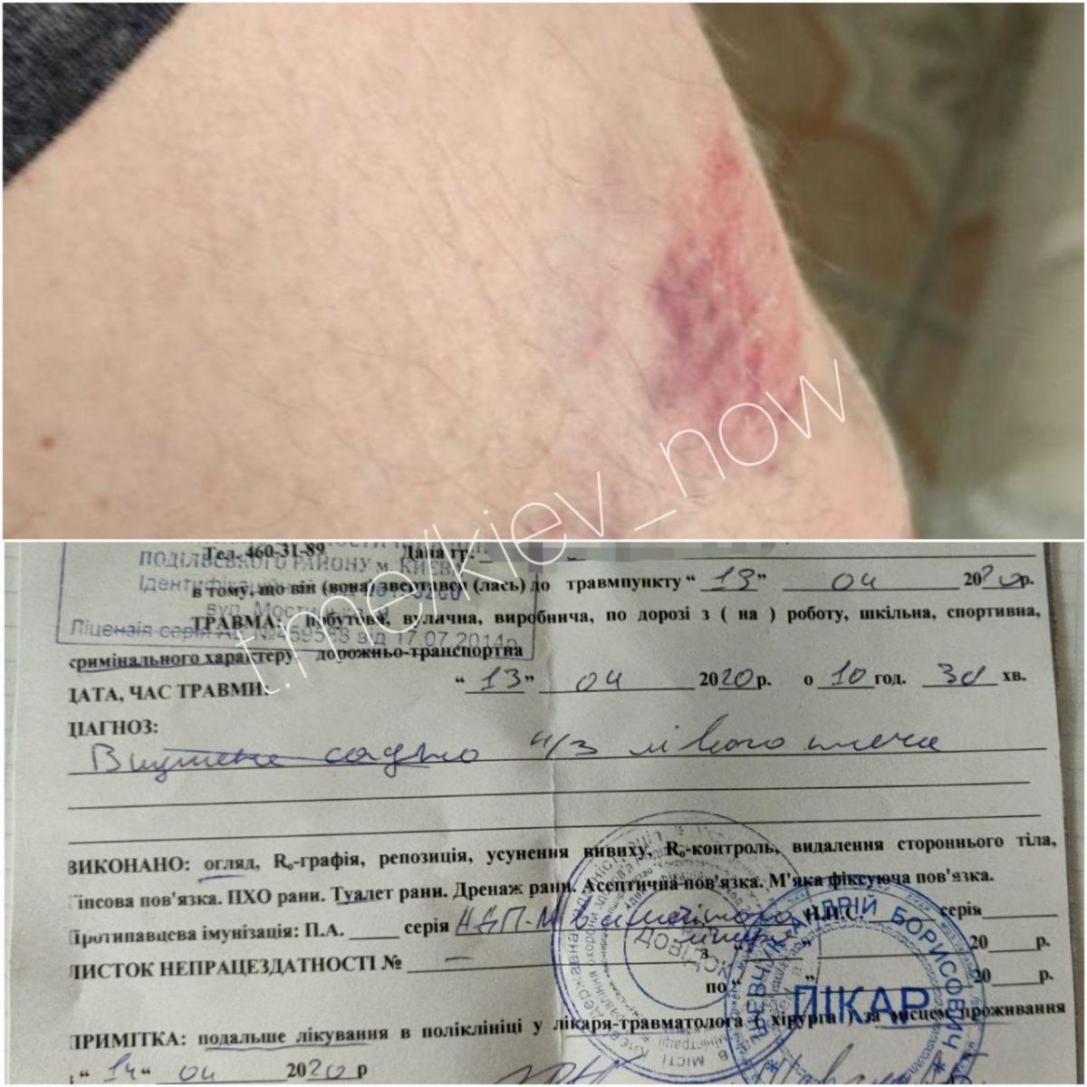 Потерпілий звернувся до лікарів / Фото: Київ Сьогодні
