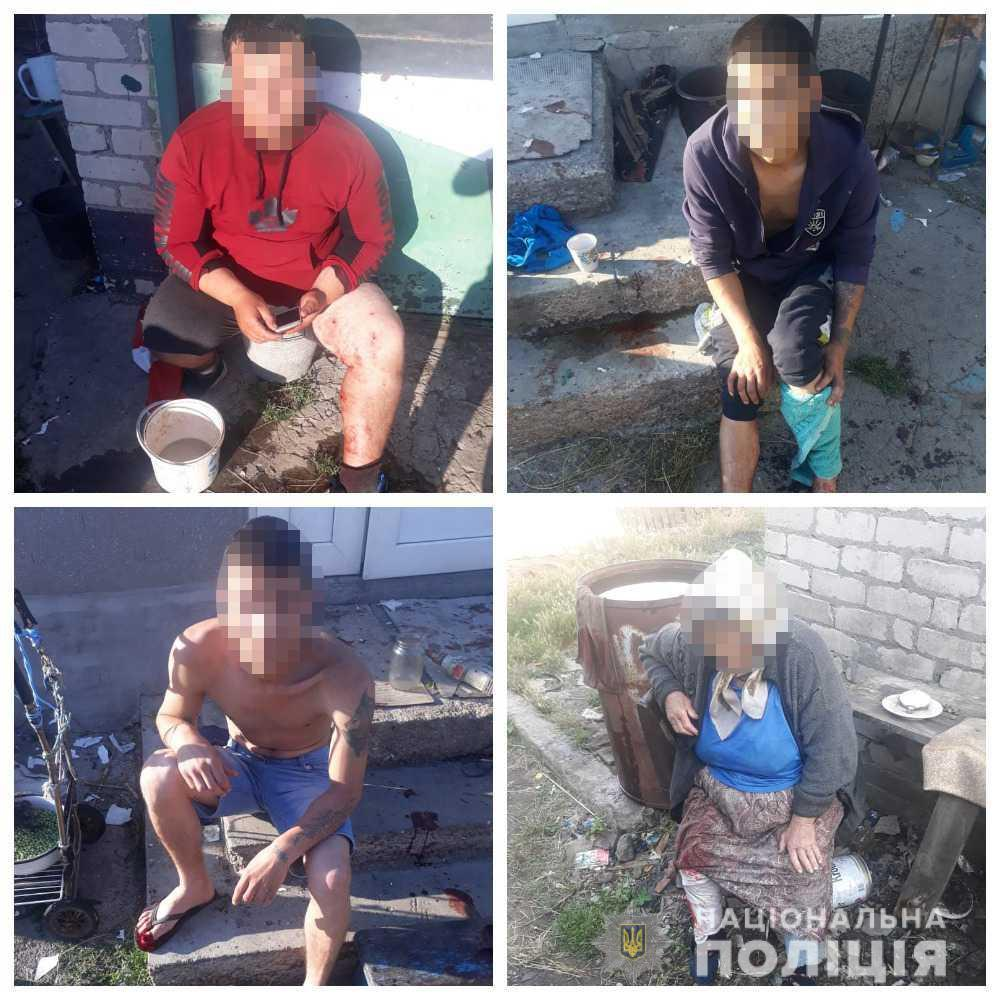 От взрыва пострадали трое мужчин и две женщины / фото Нацполіція