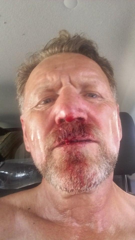 Побили заступника директора заповідника Івана Русєва / Фото facebook.com
