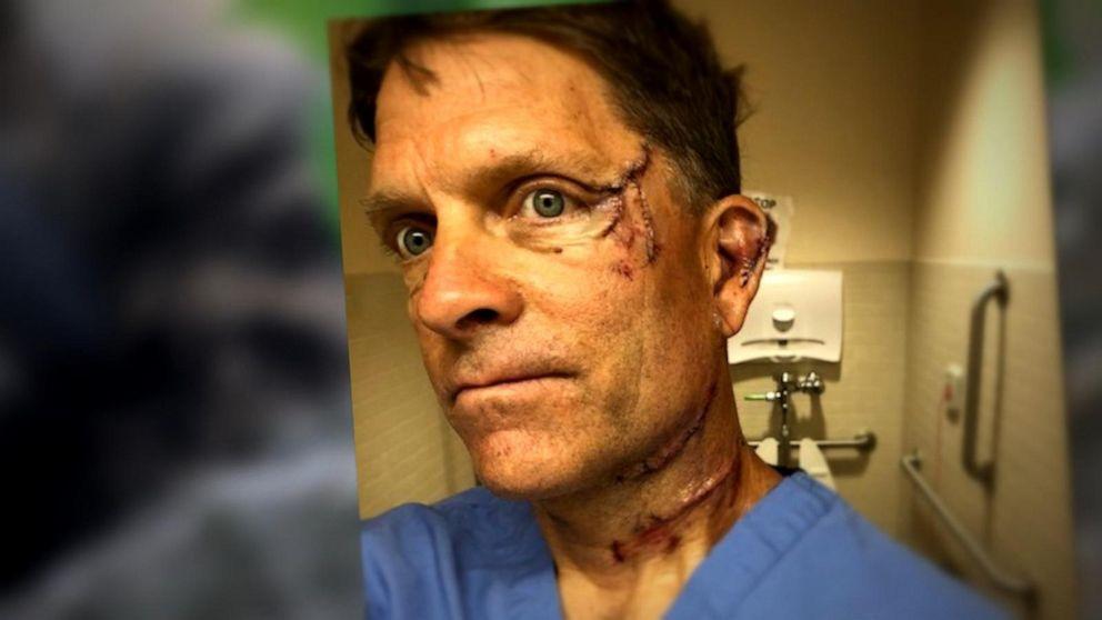 Животное испугалось и ударило мужчину / Фото Courtesy Dave Chernosky