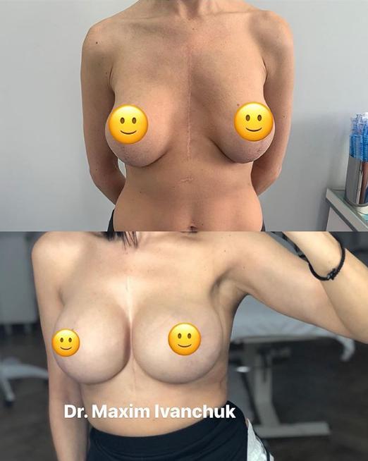 Реэндопротезирование груди 315 на 450 мл + подтяжка и коррекция ареол / instagram.com/dr.ivanchuk
