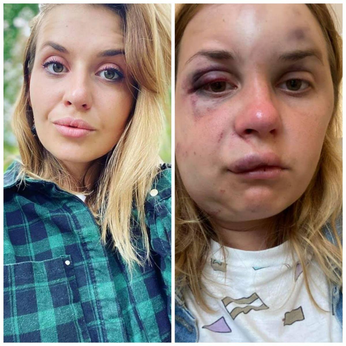 Жінка до нападу та після/ фото facebook.com/anastaisha.lygov
