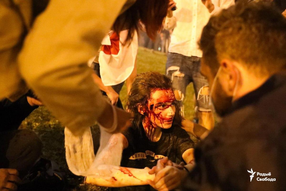 Постраждалі в результаті мітингу / Фото Радыё Свабода