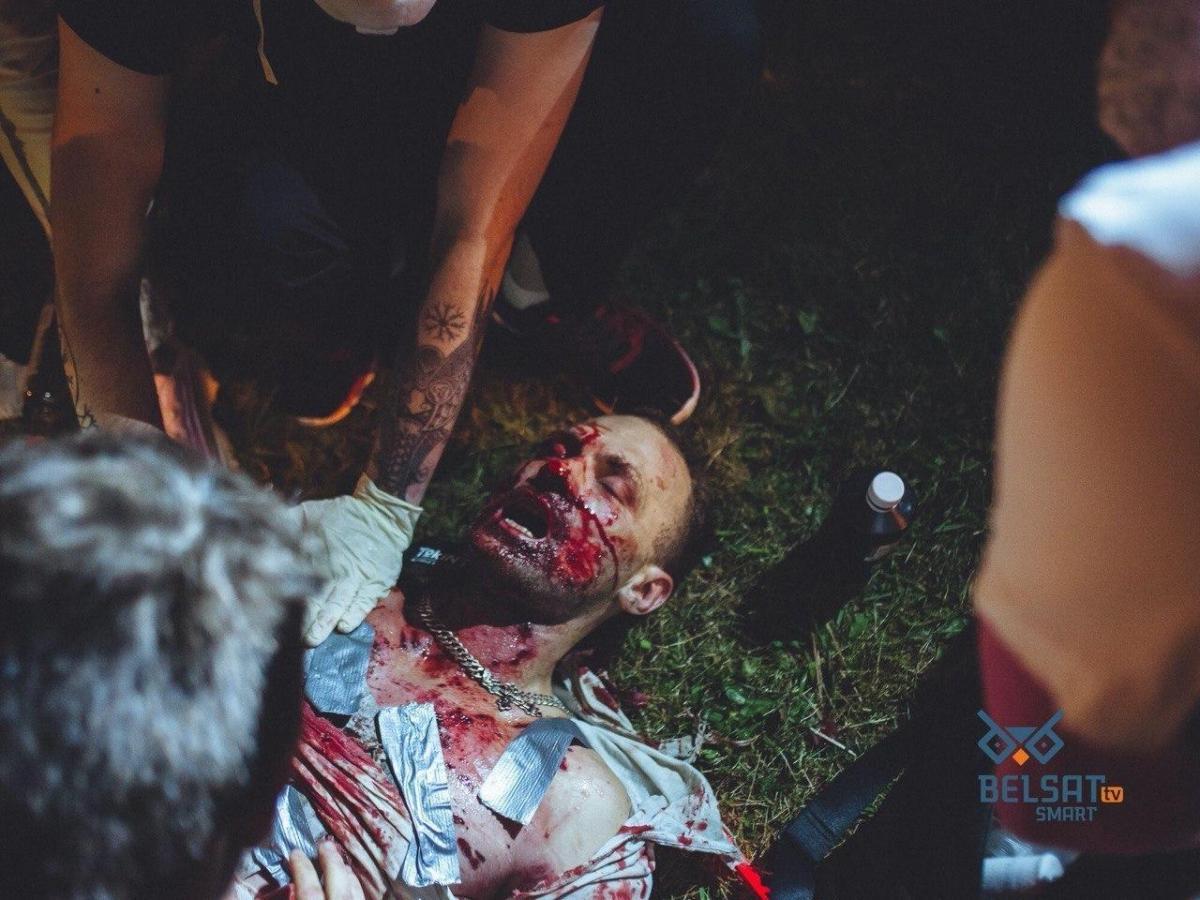 Соцсети облетела фото окровавленного мужчины / фото belsat.eu
