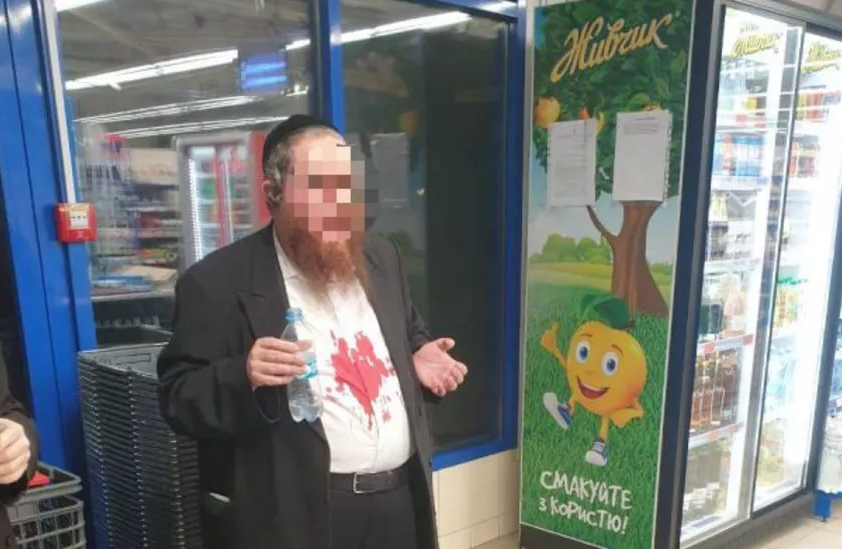 Хасиду разбили нос / фото JewishNews