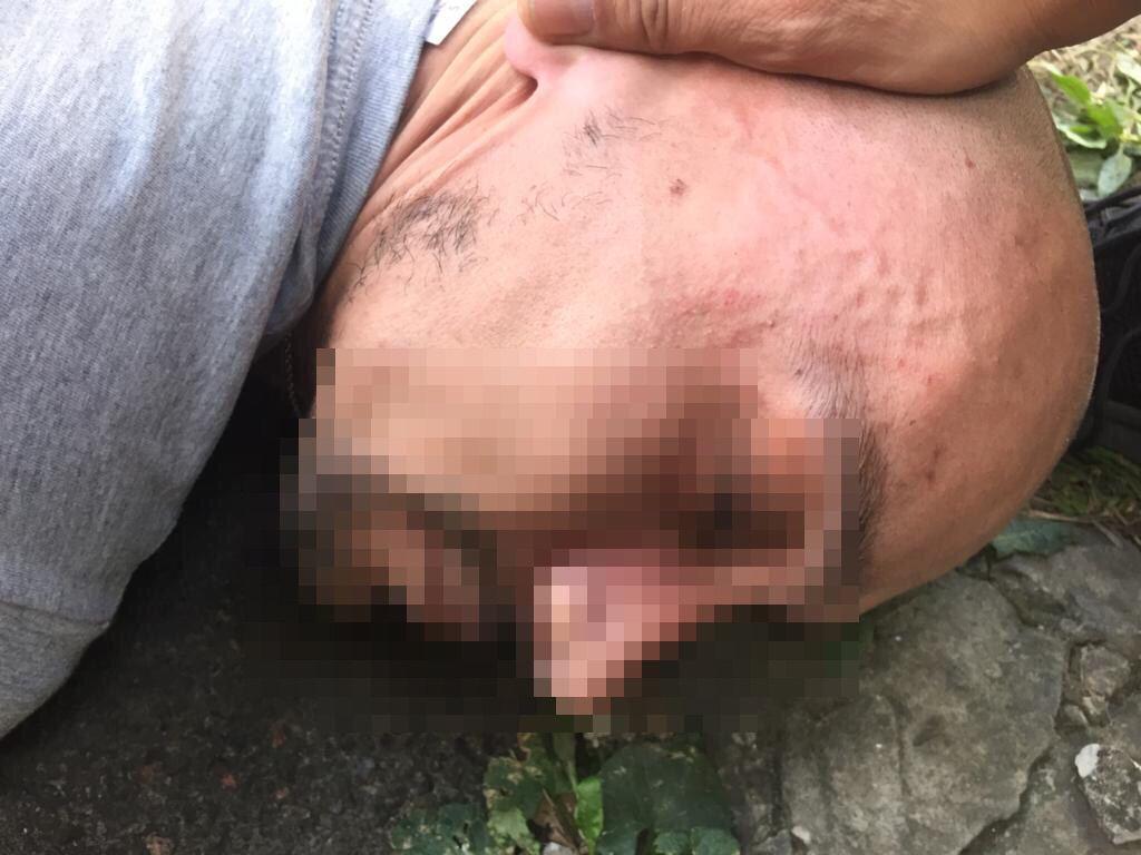 Убийца нанес 21-летней жертве 36 колото-резаных ножевых ранений / фото t.me/dkr_npu/299