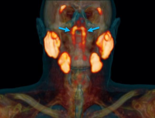 Вчені знайшли нові слинні залози в голові людини / фото Valstar et al., Radiotherapy and Oncology