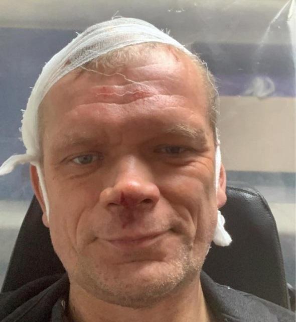 Экс-министра Швайку жестоко избили под Харьковом /фото facebook.com/ihor.shvayka