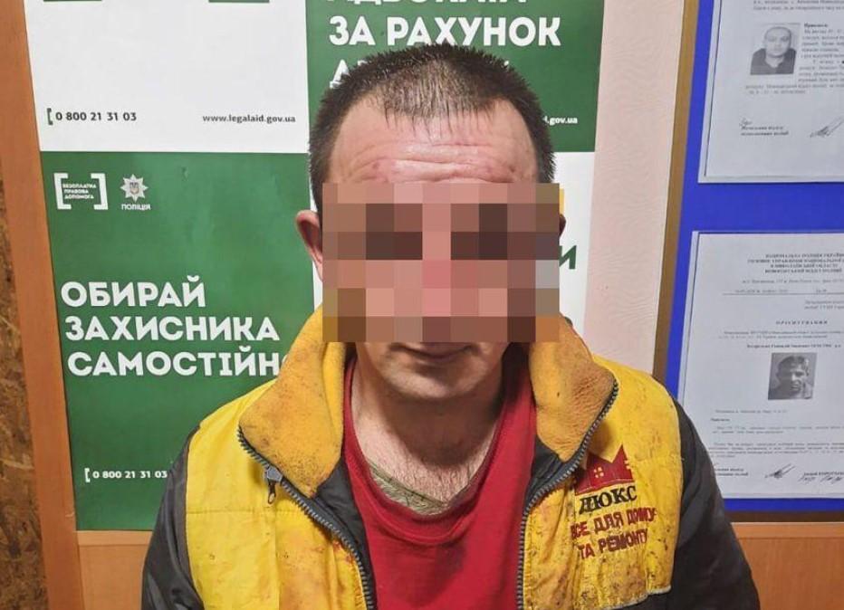 Полиция задержала мужчину, облившего химикатами женщину и двоих детей / Нацполиция