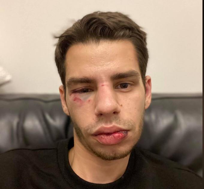 У чоловіка гематома на оці, зламаний ніс та пошкоджений зуб/ фото Сергеєв/Facebook