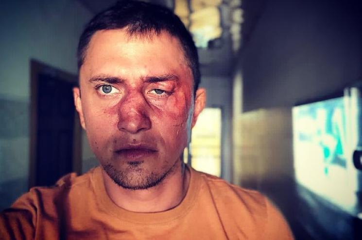 Фото актор розмістив для залучення уваги зі зйомок 2018 року \ instagram.com/bugevuge