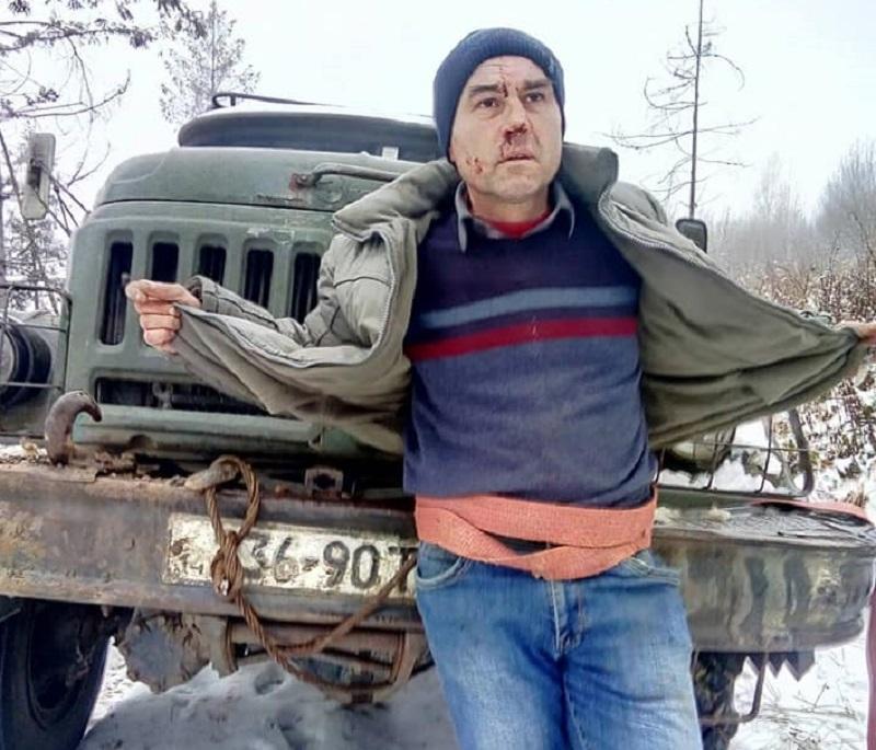 Привязали к бамперу и уже ехали - селяне помешали пытке журналиста / facebook.com/yavdik.vladimir