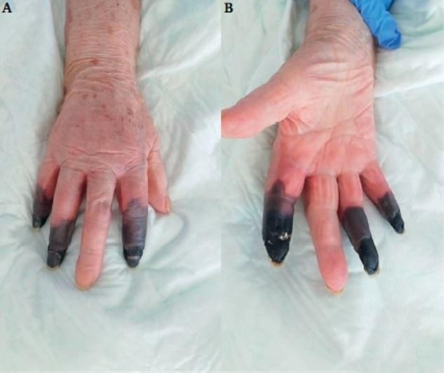 Жінці довелося ампутувати кілька пальців після зараження коронавірусом / фото Daily Mail