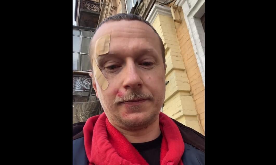 Хлопець розпорошив Майклу Щуру в обличчя газовий балончик / скріншот з відео