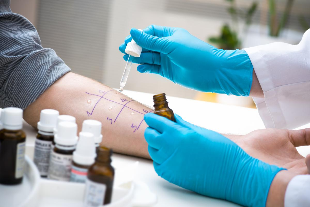 Тест на аллергены / ru.depositphotos.com