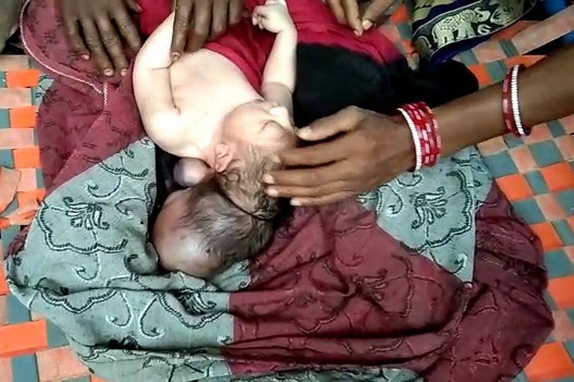 Трёхглавый младенец родился в результате нормальной беременности/ фото Jam Press/Rare Shot News
