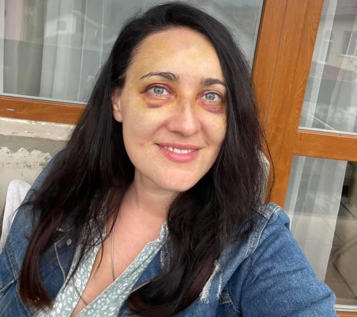 Після аварії ведуча вимушена ходити з синцями / фото - facebook.com/1plus1.Vitvitska