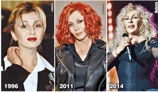 Ирина Билык до и после пластики / фото forum.pravda.com.ua