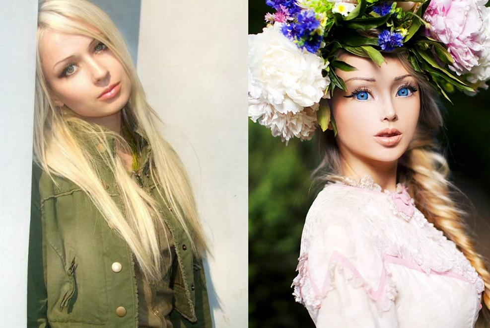Валерия Лукьянова до и после пластики / фото 300experts.ru