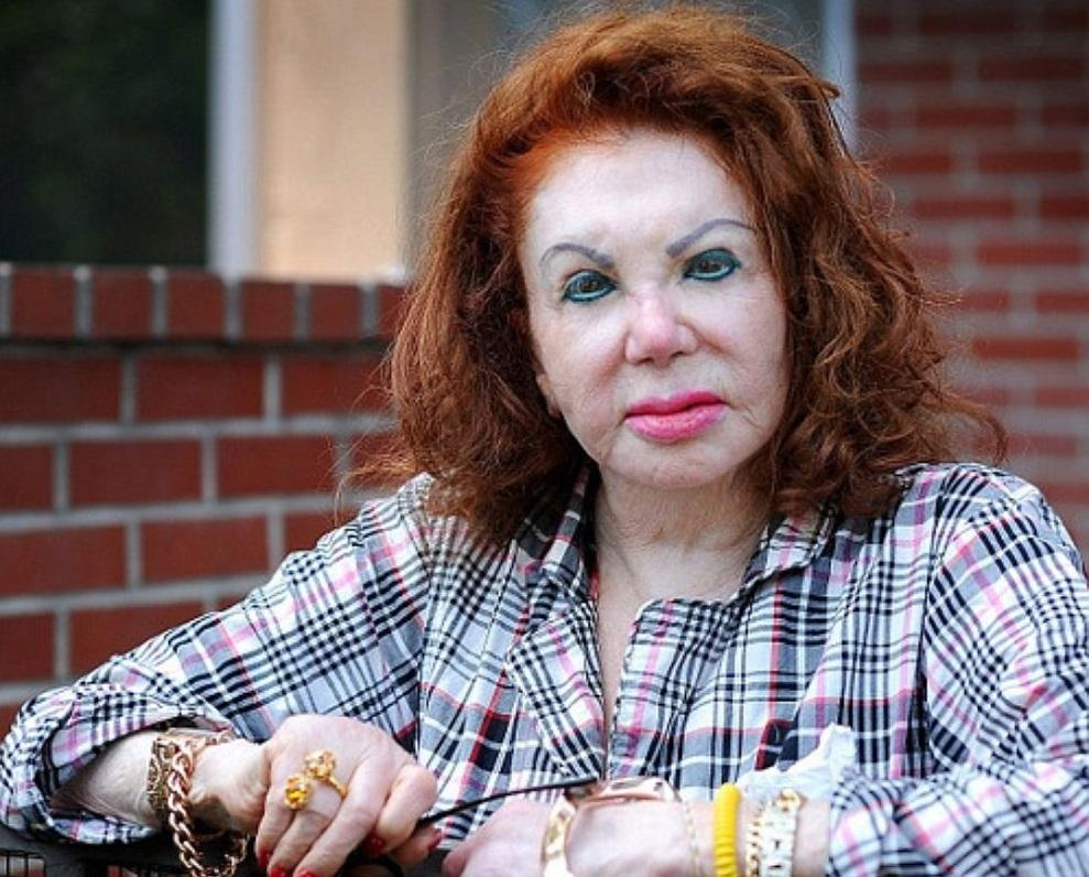 Звезды, которые испортили внешность / фото biography-life.ru