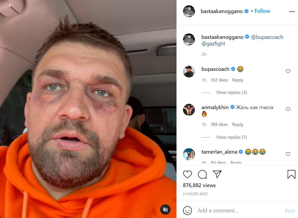 Баста показал изувеченное лицо / Скриншот Instagram