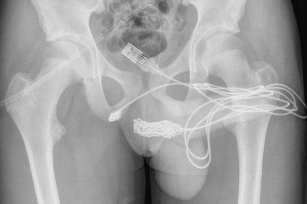 Фото Urology Case Reports