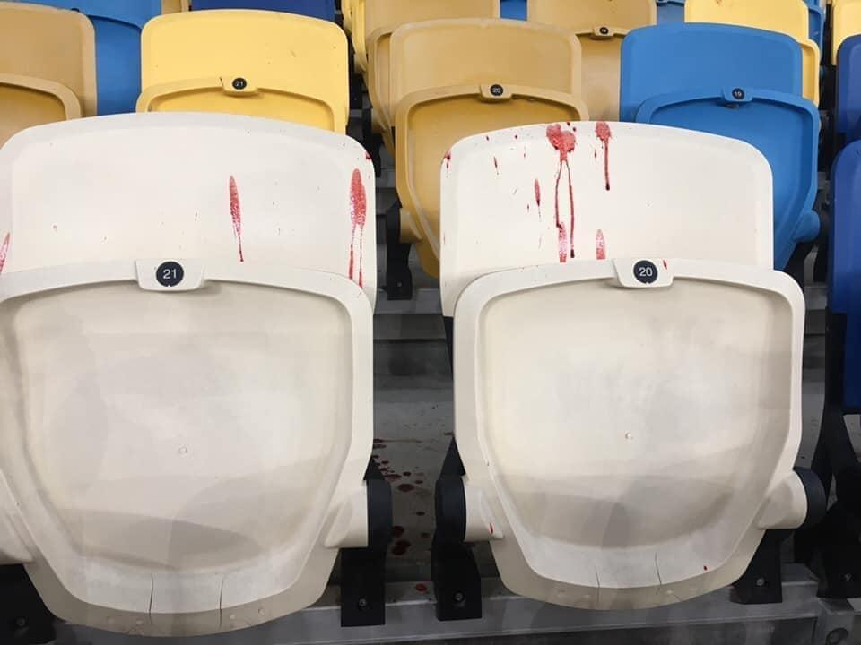 Кресла в пятнах крови