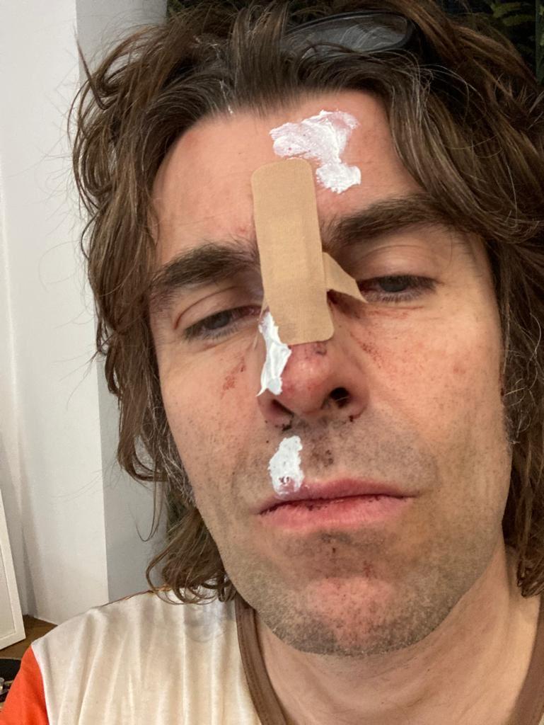 фото Liam Gallagher