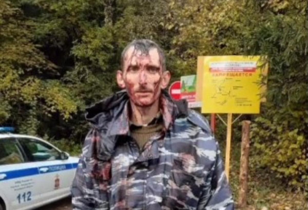 Постраждалий росіянин / скріншот з відео