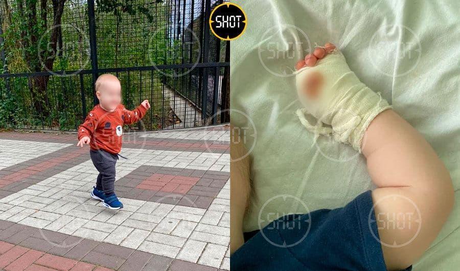 Ребенок, которому тигр откусил палец