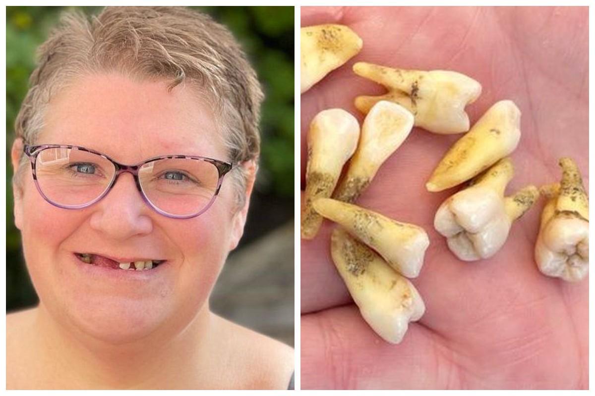 Женщина вырвала себе 11 зубов / фото - BBC